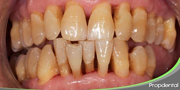la enfermedad periodontal (I)