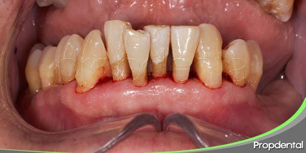 la enfermedad periodontal (II)