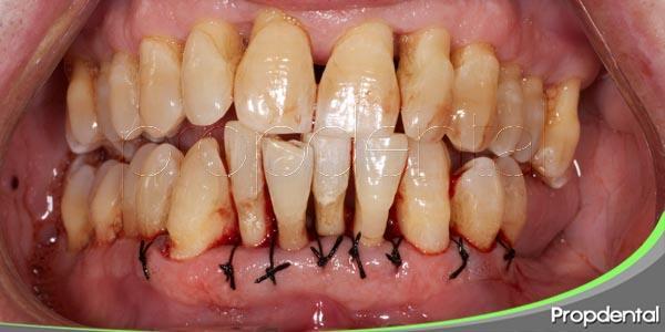 la enfermedad periodontal (V)