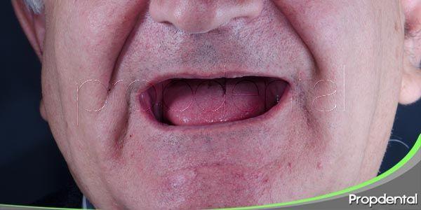 la pérdida de los dientes por desgaste en ancianos
