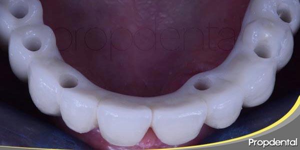 las prótesis dentales