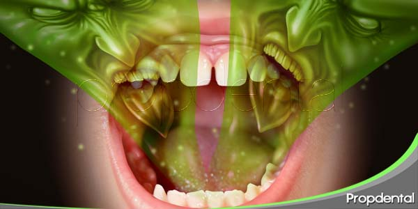 halitosis o mal olor de boca