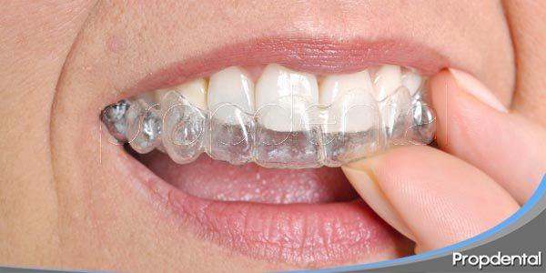 métodos de ortodoncia invisible