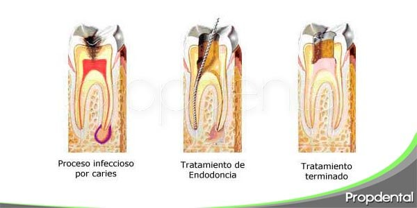 pasos de la endodoncia