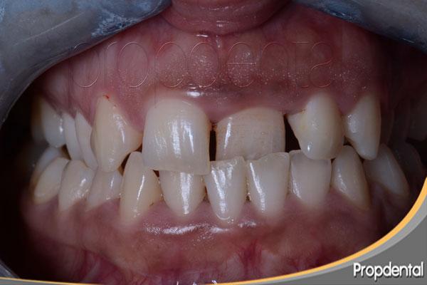 preguntas frecuentes de ortodoncia
