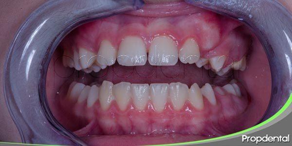 problemas orales de las enfermedades degenerativas