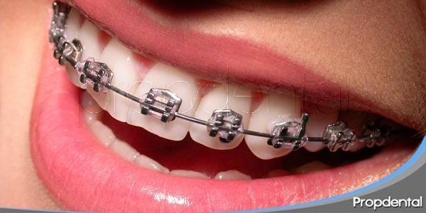 que es la ortodoncia multidisciplinar