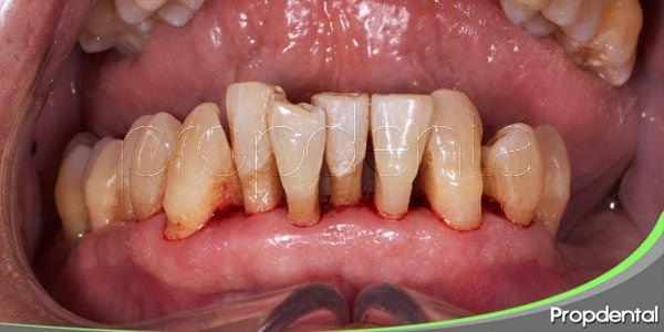 todo sobre la enfermedad periodontal