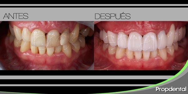 tratamiento odontológico en pacientes drogadictos