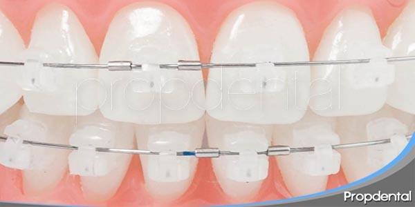 ventajas del sistema damon en ortodoncia