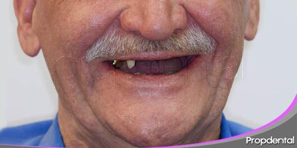 deterioro psicológico y pérdida de dientes