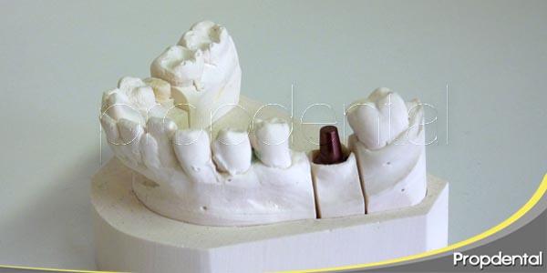 diente pilar