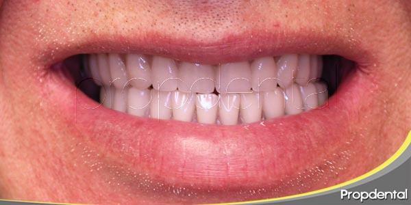dientes nuevos con implantes
