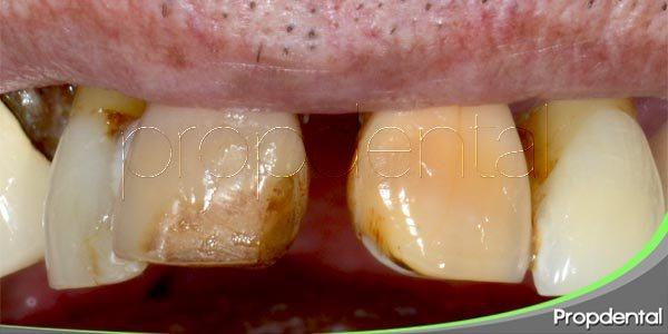 dientes podridos