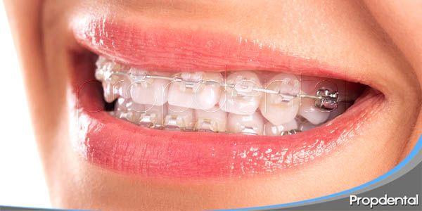 ¿está la ortodoncia estética de moda?