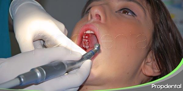 evitar el sangrado de las encías