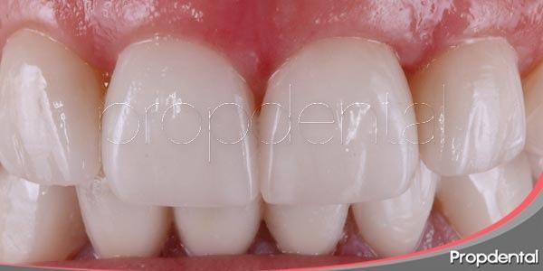 historia de la odontología estética