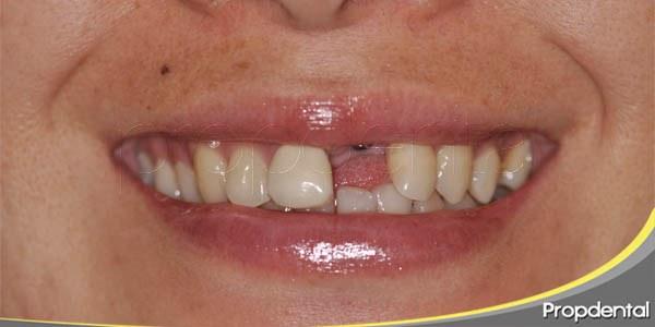 implantes de un solo diente