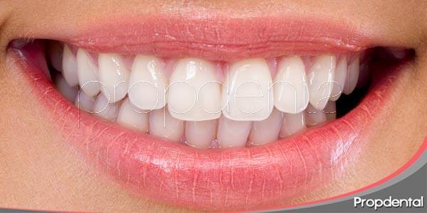la importancia de una boca bonita