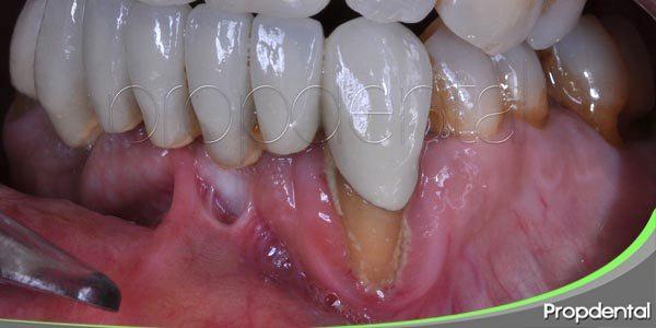 la periodontitis al completo
