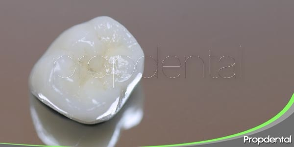 corona dental de porcelana