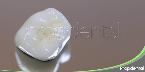 las coronas dentales