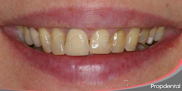 las manchas dentales