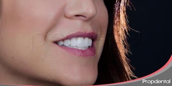 odontología estética en propdental