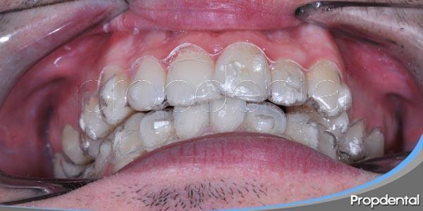 ortodoncia en pacientes con maloclusión