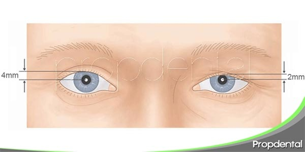 pacientes con miastenia gravis