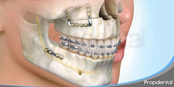 particularidades de la cirugía ortognática