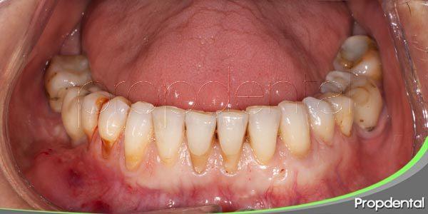 preguntas frecuentes sobre la periodontitis
