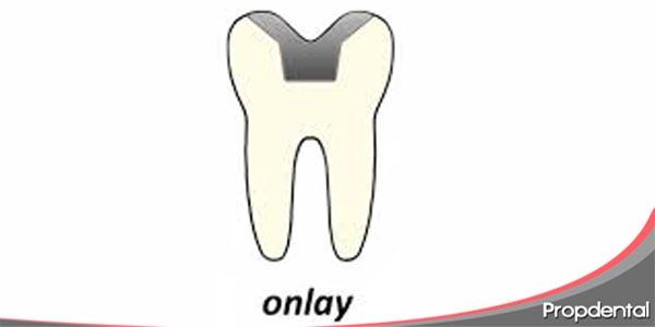 ¿qué son las onlays dentales?