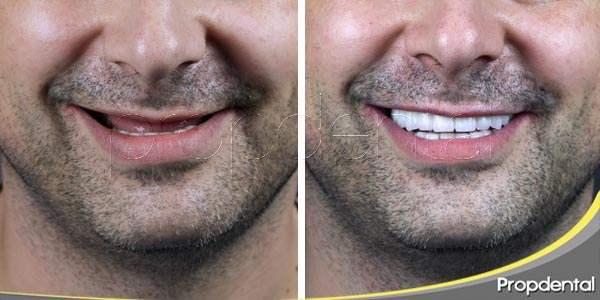 recuperar los dientes perdidos