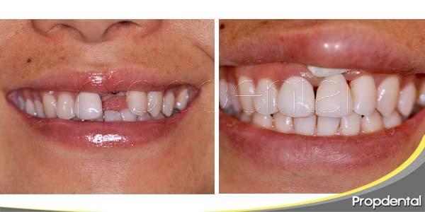 restaurar la pérdida de un diente a través del implante