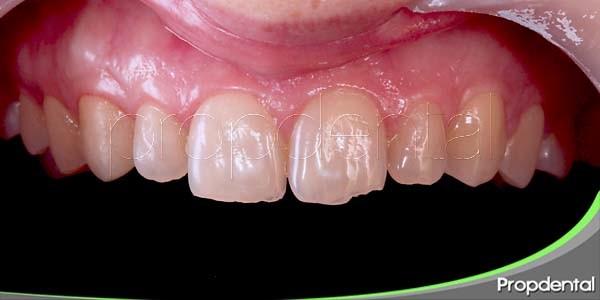 signos y síntomas del diente fisurado