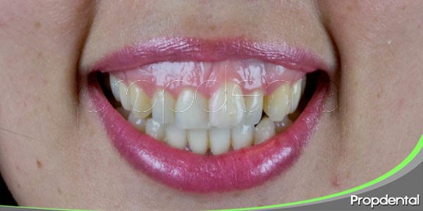 solucionar la sonrisa gingival