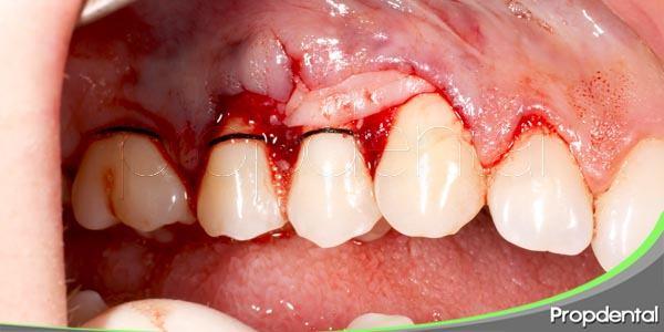 tratamiento quirúrgico periodontal