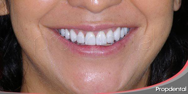 tratamientos de odontología estética