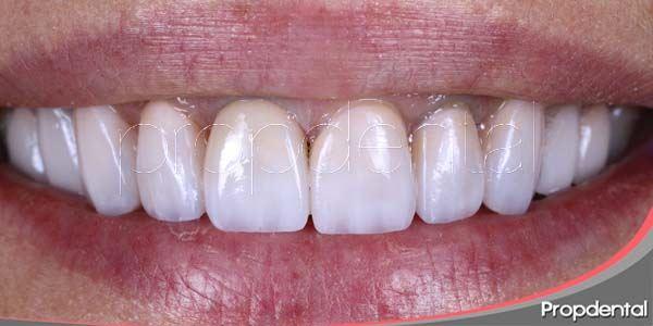 Tratamientos para las manchas dentales