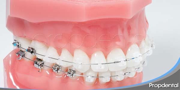 ventajas de los brackets de baja fricción