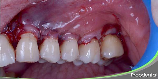 antecedentes históricos de las técnicas quirúrjicas periodontales