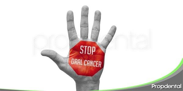 cáncer oral ¿qué debe tener en cuenta el paciente?