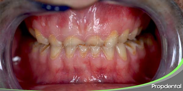 causas de la retracción gingival