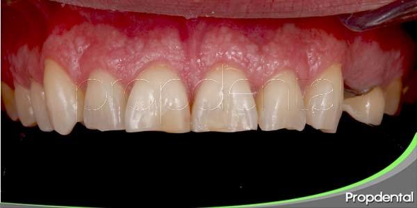 causas del desgaste dental