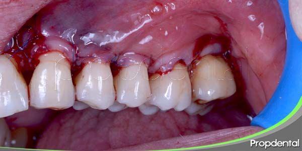 cirugía periodontal: técnicas para las bolsas periodontales