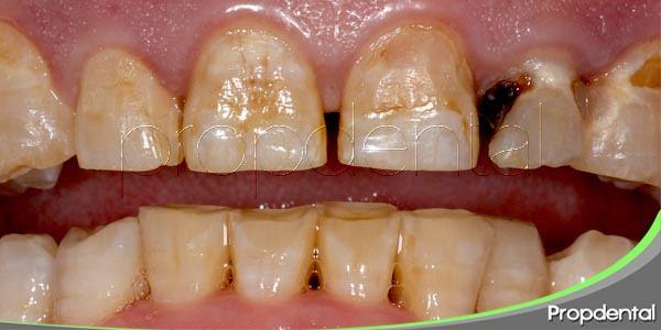 consecuencias de la mala higiene dental