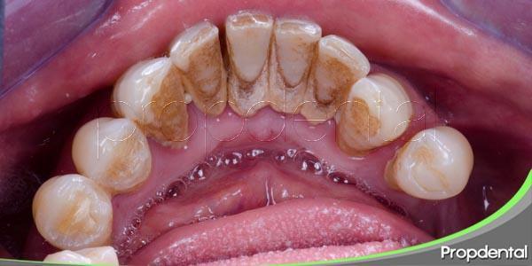 consecuencias de una higiene oral insuficiente
