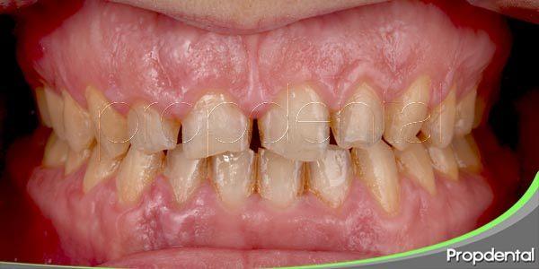 consecuencias del desgaste dental
