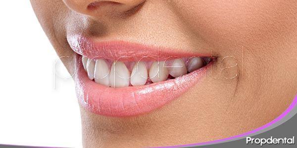 curiosidades dentales